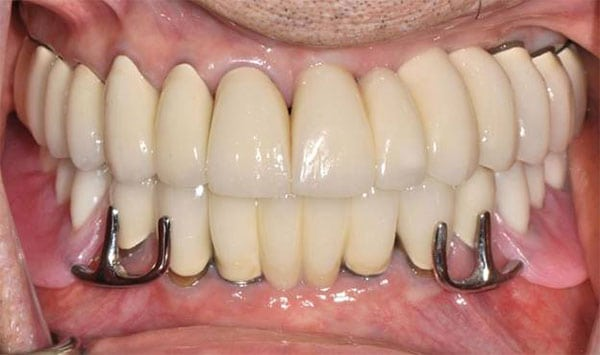 Complete-Arch Treatments