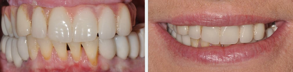 Full Mouth Reconstruction Case Study